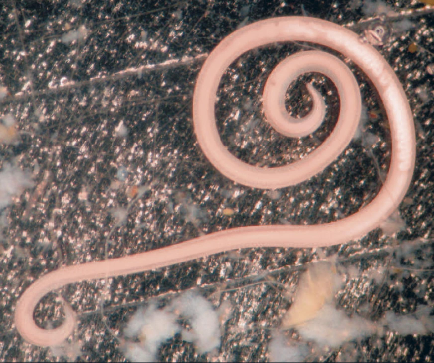Как вывести паразитов из организма в 4